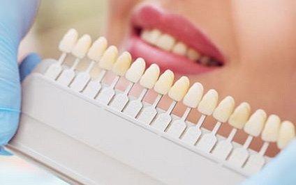Was grau zahn tun wird Zahnverfärbung