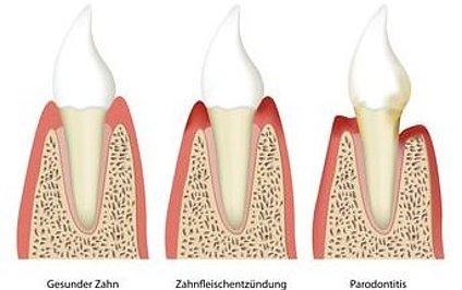 Wird grau zahn wurzelbehandelter Patientenfrage: Wurzelbehandlung